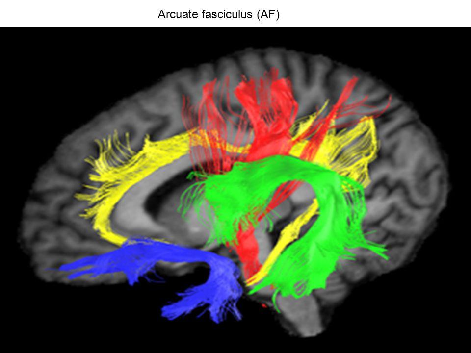 Arcuate fasciculus (AF)