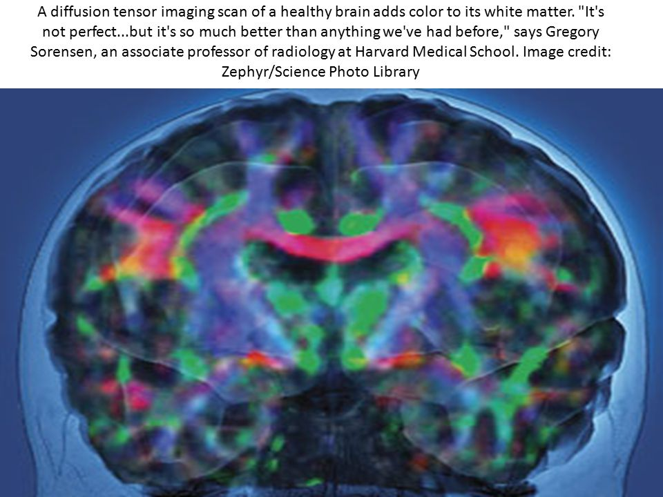 A diffusion tensor imaging scan of a healthy brain adds color to its white matter.