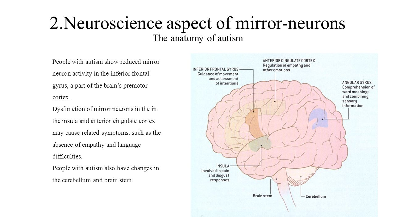 2.Neuroscience aspect of mirror-neurons The anatomy of autism People with autism show reduced mirror neuron activity in the inferior frontal gyrus, a