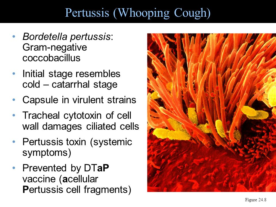 Pertussis (Whooping Cough) Figure 24.8 Bordetella pertussis: Gram-negative coccobacillus Initial stage resembles cold – catarrhal stage Capsule in vir