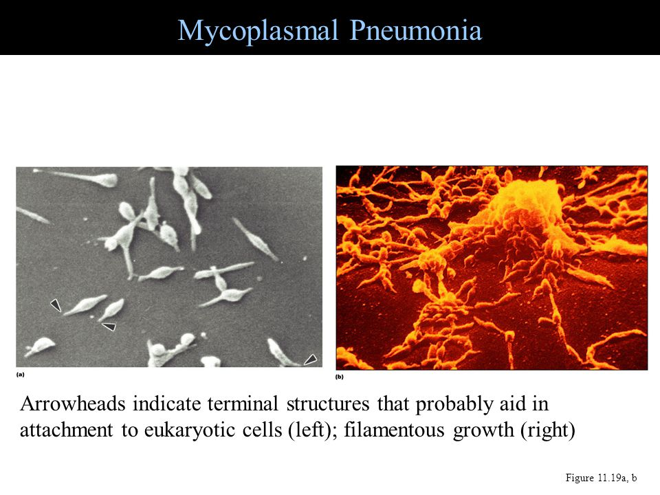 Mycoplasmal Pneumonia Figure 11.19a, b Arrowheads indicate terminal structures that probably aid in attachment to eukaryotic cells (left); filamentous