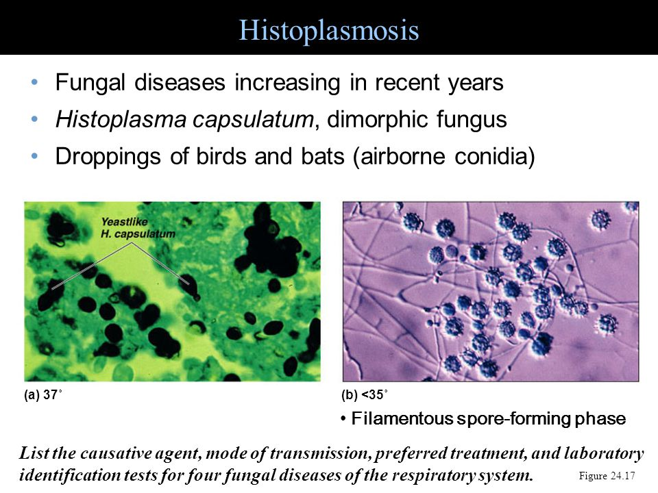 Histoplasmosis Figure 24.17 Fungal diseases increasing in recent years Histoplasma capsulatum, dimorphic fungus Droppings of birds and bats (airborne
