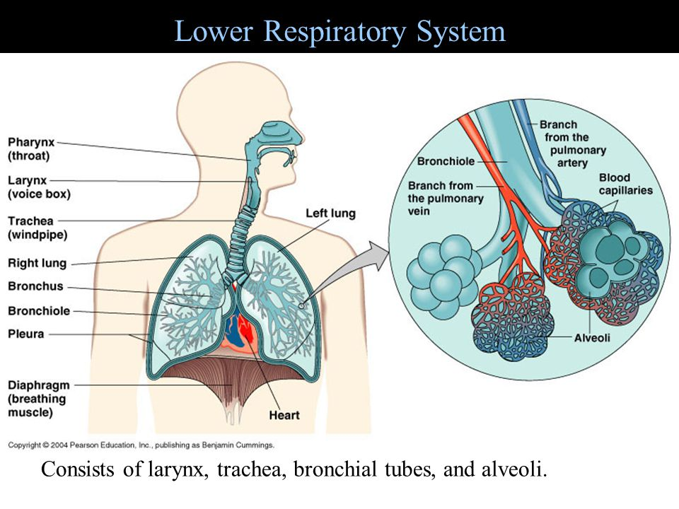 Streptococcal pharyngitis (Strep throat) Figure 24.3 Streptococcus pyogenes (group A beta-hemolytic) Inflammation of mucous membrane and fever, tonsillitis and otitis media Diagnosis by indirect agglutination Resistant to phagocytosis Penicillin treatment Streptokinases lyse clots Streptolysins are cytotoxic Differentiate among pharyngitis, laryngitis, tonsillitis, sinusitis, and epiglottitis.