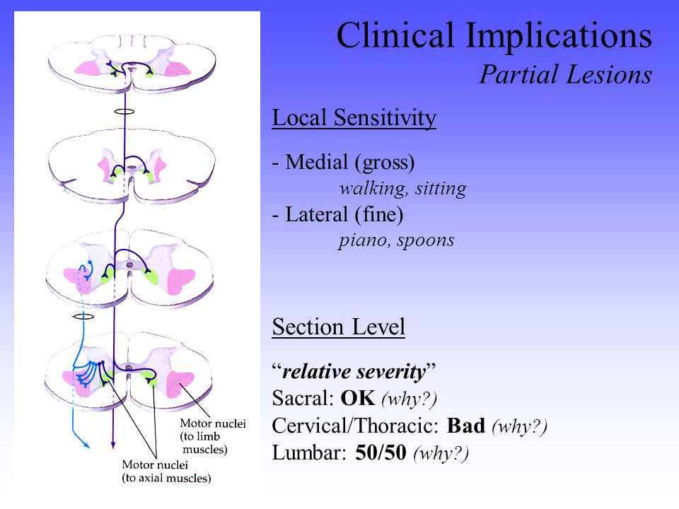 Local Sensitivity - Medial (gross) walking, sitting - Lateral (fine) piano, spoons Clinical Implications Partial Lesions Section Level relative severity OK Sacral: OK (why ) Bad Cervical/Thoracic: Bad (why ) 50/50 Lumbar: 50/50 (why )