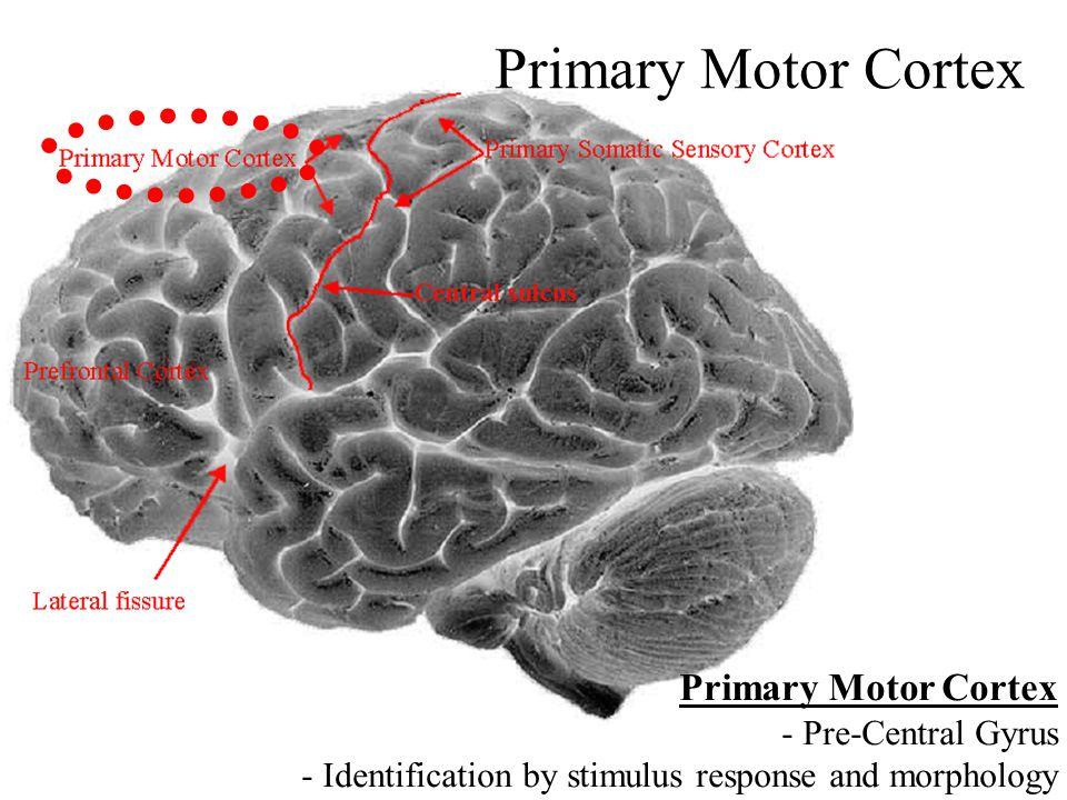 Primary Motor Cortex - Pre-Central Gyrus - Identification by stimulus response and morphology