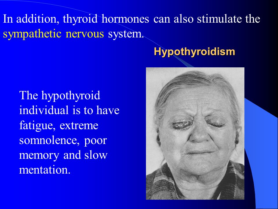 3. Effects of Thyroid Hormone on Nervous System Thyroid hormones increase excitability of central nervous system. In hyperthyroidism, the patient is l