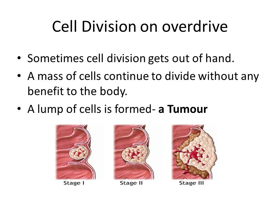 Cell Division on overdrive Sometimes cell division gets out of hand. A mass of cells continue to divide without any benefit to the body. A lump of cel