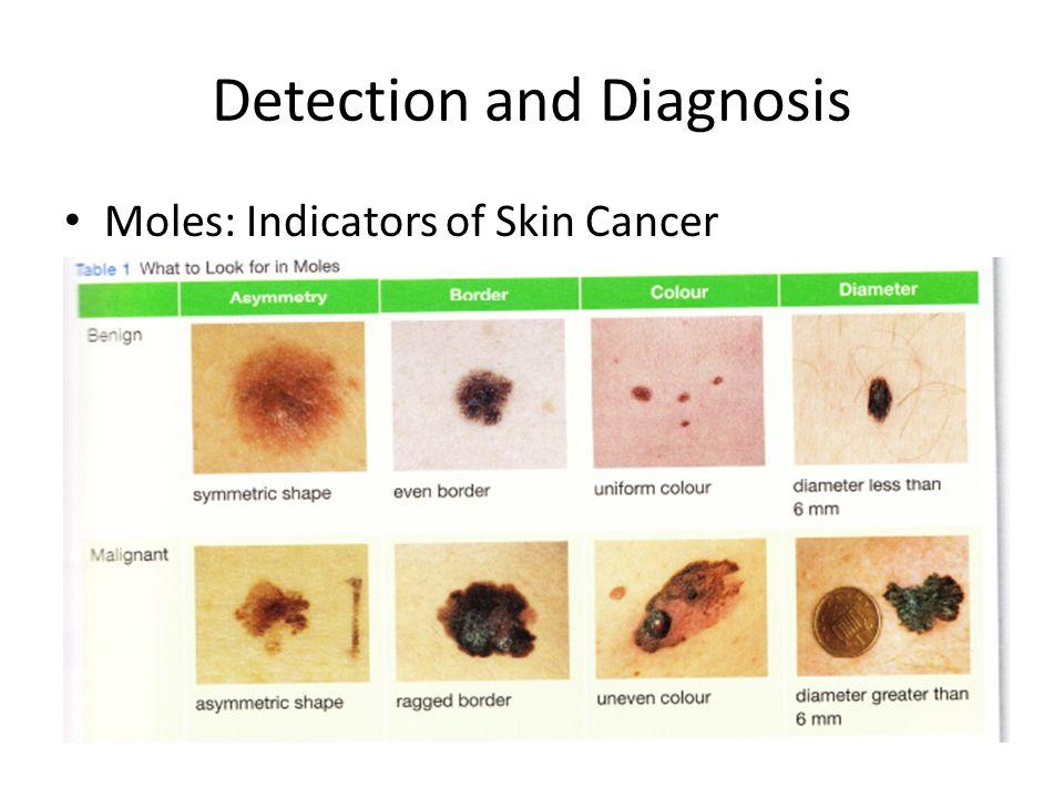 Detection and Diagnosis Moles: Indicators of Skin Cancer