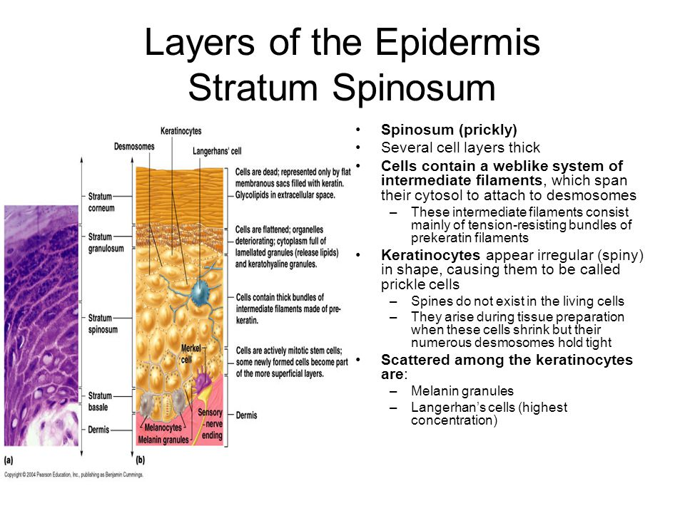 Layers of the Epidermis Stratum Spinosum Spinosum (prickly) Several cell layers thick Cells contain a weblike system of intermediate filaments, which span their cytosol to attach to desmosomes –These intermediate filaments consist mainly of tension-resisting bundles of prekeratin filaments Keratinocytes appear irregular (spiny) in shape, causing them to be called prickle cells –Spines do not exist in the living cells –They arise during tissue preparation when these cells shrink but their numerous desmosomes hold tight Scattered among the keratinocytes are: –Melanin granules –Langerhan's cells (highest concentration)