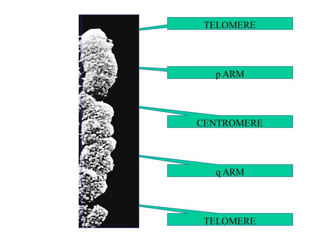 CENTROMERE TELOMERE q ARM p ARM