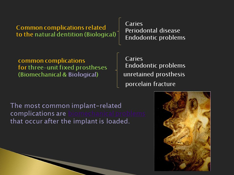 Common complications related to the natural dentition (Biological) Caries Periodontal disease Endodontic problems common complications for three-unit fixed prostheses (Biomechanical & Biological) Caries Endodontic problems unretained prosthesis porcelain fracture The most common implant-related complications are biomechanical problems that occur after the implant is loaded.biomechanical problems
