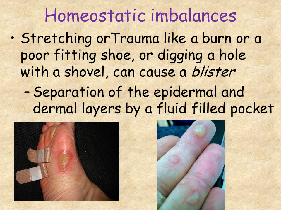 Homeostatic imbalances Stretching orTrauma like a burn or a poor fitting shoe, or digging a hole with a shovel, can cause a blister –Separation of the