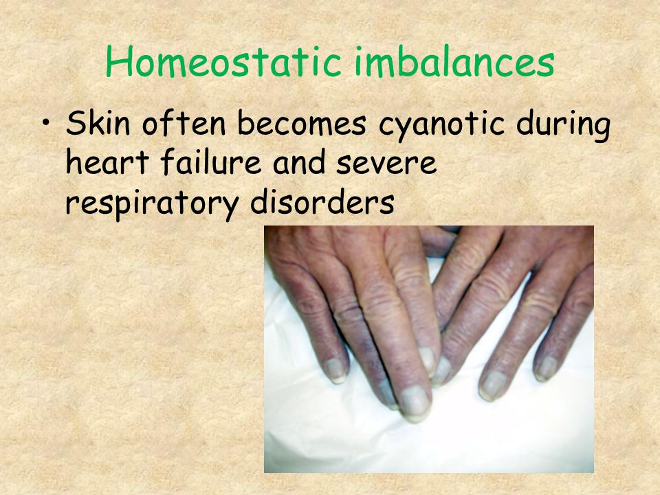 Homeostatic imbalances Skin often becomes cyanotic during heart failure and severe respiratory disorders