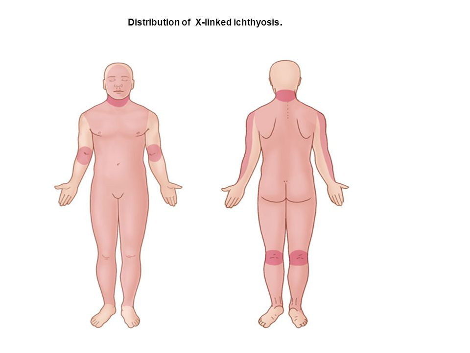 Distribution of X-linked ichthyosis.