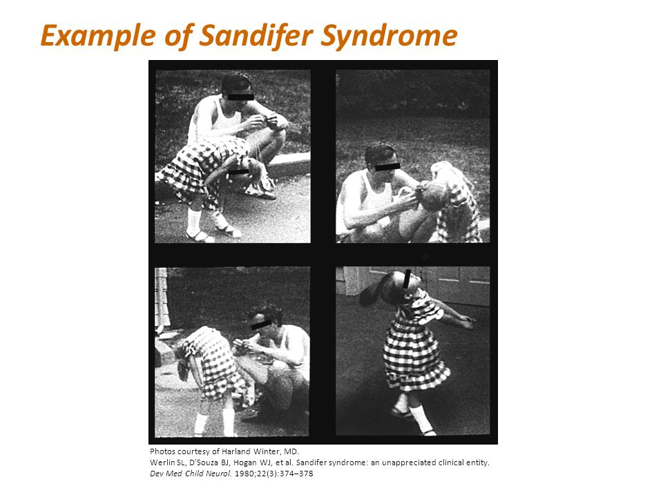 Example of Sandifer Syndrome Photos courtesy of Harland Winter, MD. Werlin SL, D'Souza BJ, Hogan WJ, et al. Sandifer syndrome: an unappreciated clinic