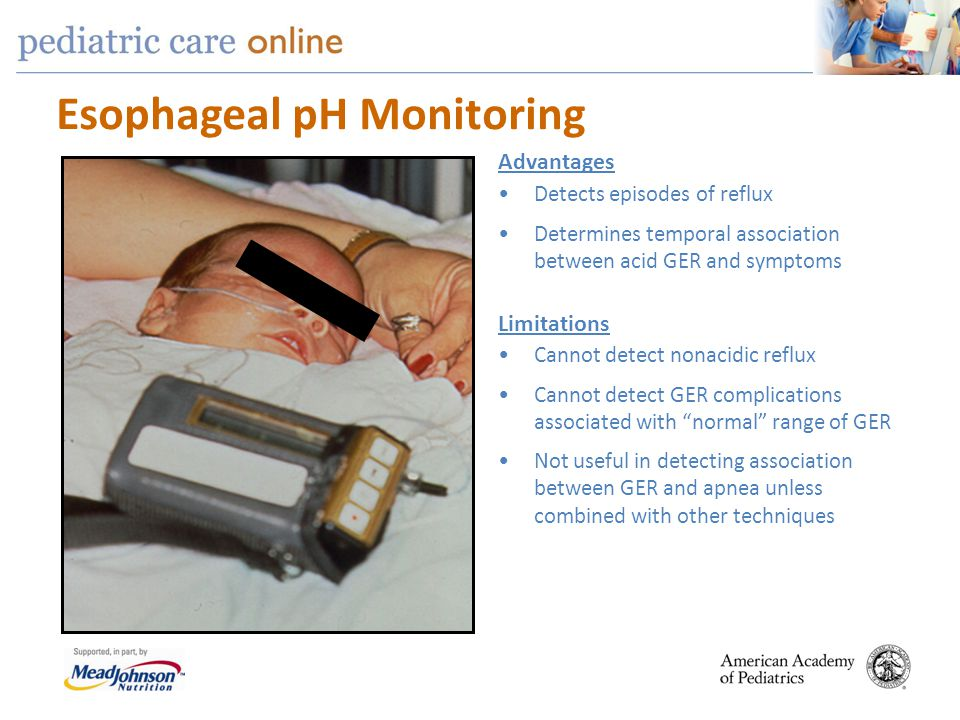 "Esophageal pH Monitoring Cannot detect nonacidic reflux Cannot detect GER complications associated with ""normal"" range of GER Not useful in detecting"