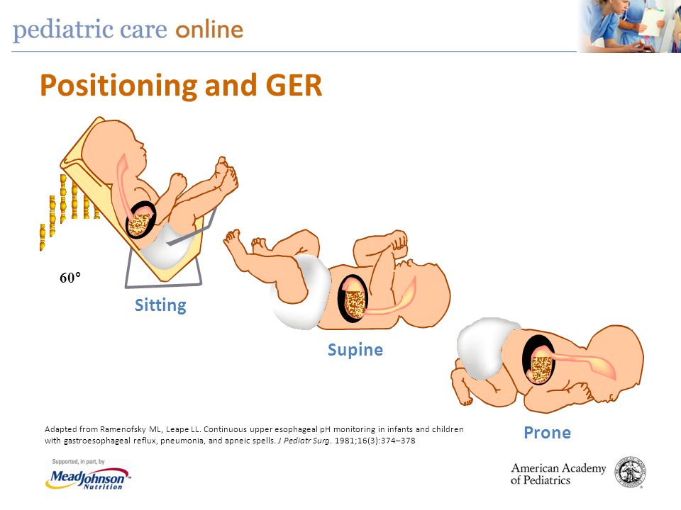 Positioning and GER Sitting Supine Prone 60° Adapted from Ramenofsky ML, Leape LL. Continuous upper esophageal pH monitoring in infants and children w