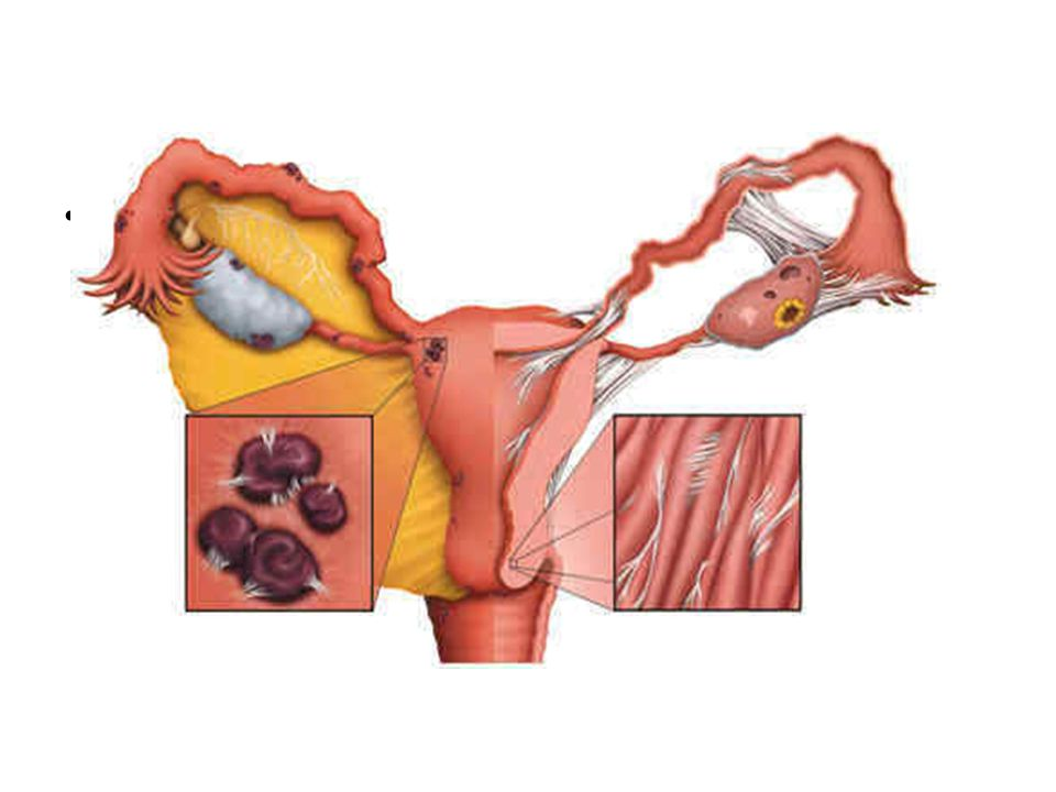 Treatment For primary dysmenorrhea: While there is no cure for primary dysmenorrhea, many steps can be taken to reduce or eliminate symptoms.