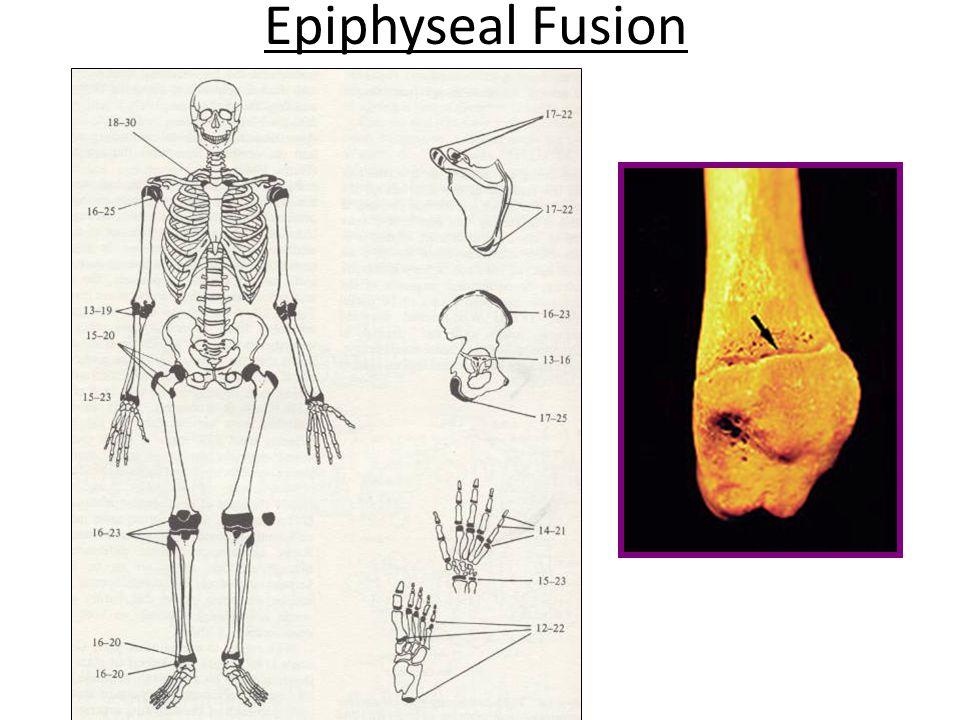 Epiphyseal Fusion