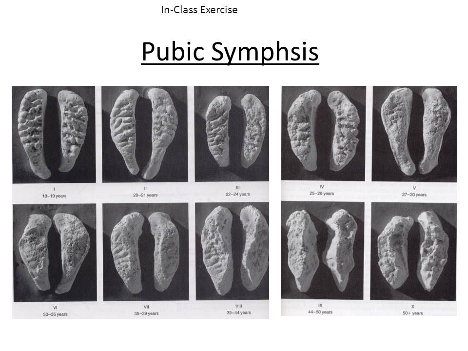 Pubic Symphsis In-Class Exercise