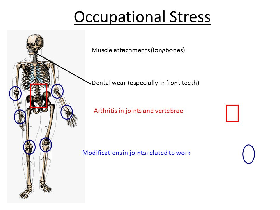 Occupational Stress Modifications in joints related to work Arthritis in joints and vertebrae Dental wear (especially in front teeth) Muscle attachments (longbones)