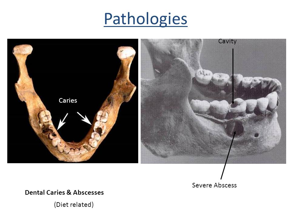 Pathologies Severe Abscess Cavity Dental Caries & Abscesses (Diet related) Caries
