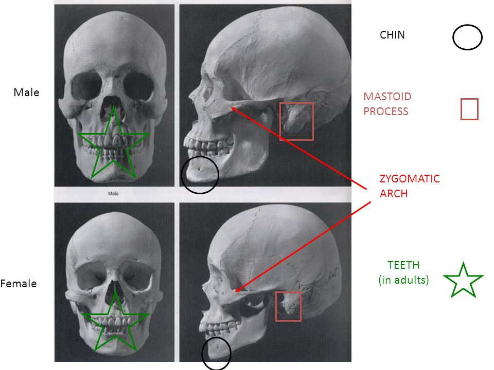 Male Female CHIN MASTOID PROCESS ZYGOMATIC ARCH TEETH (in adults)