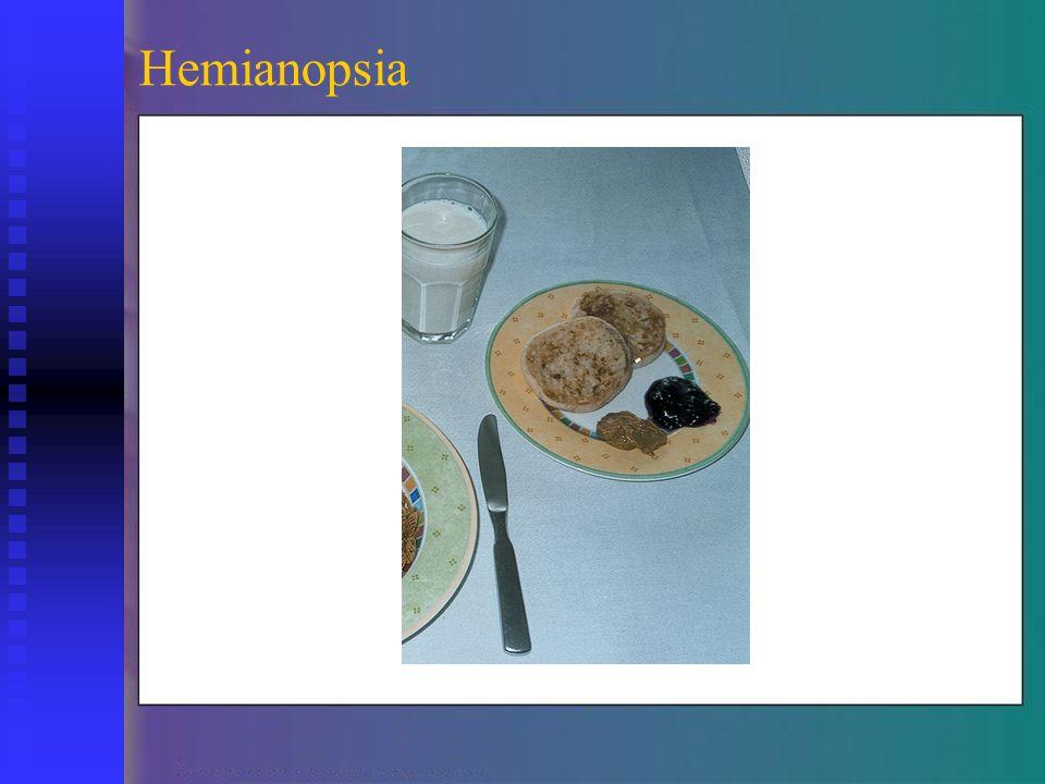 Hemianopsia
