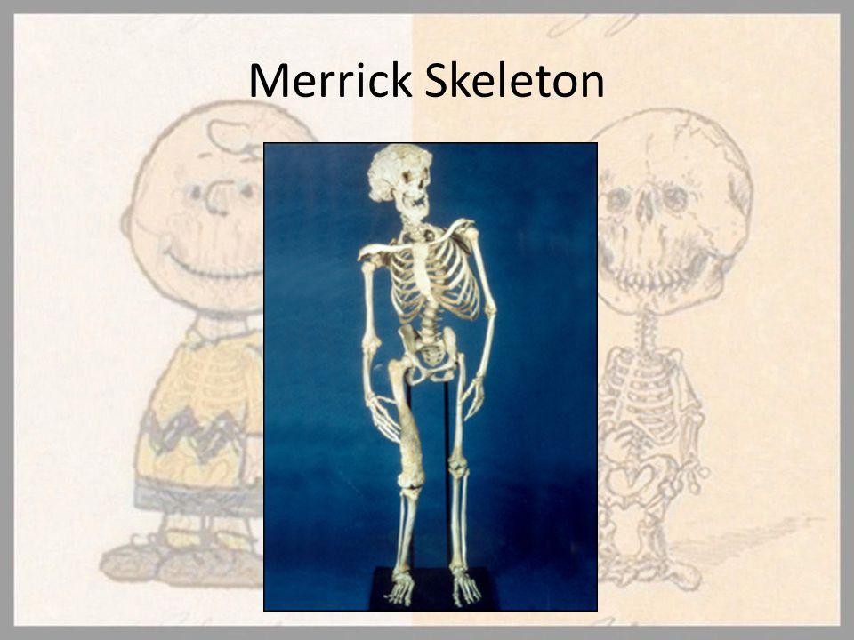 Merrick Skeleton