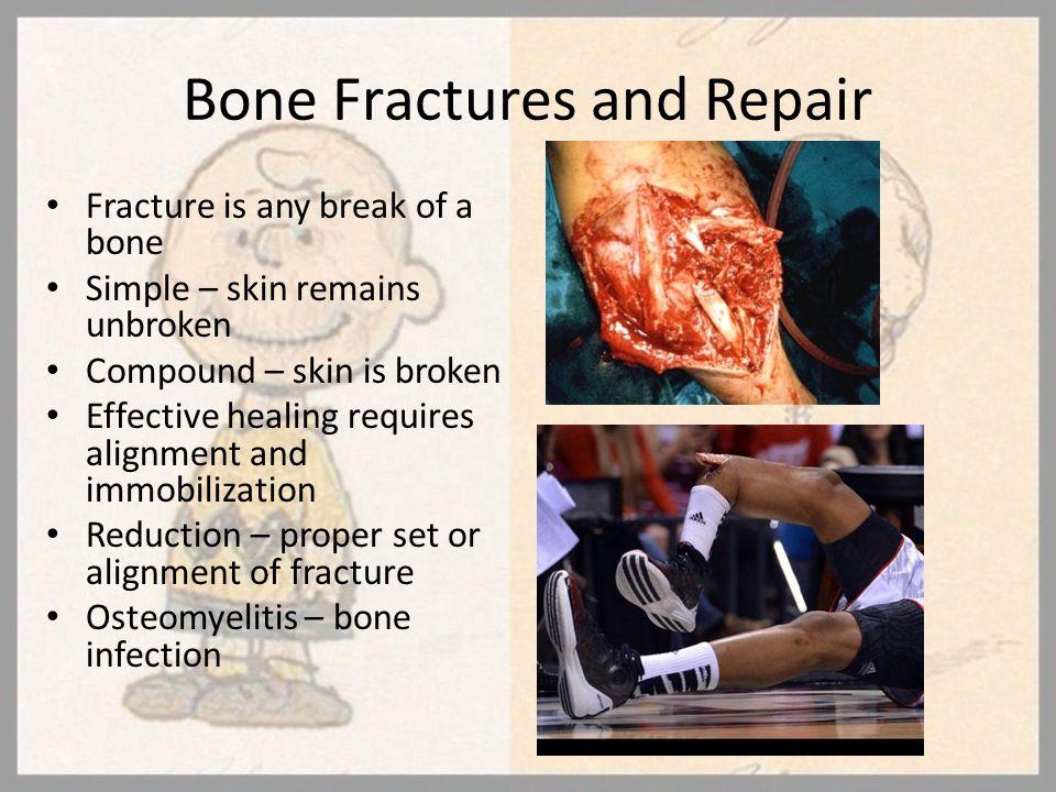 Bone Fractures and Repair Fracture is any break of a bone Simple – skin remains unbroken Compound – skin is broken Effective healing requires alignmen