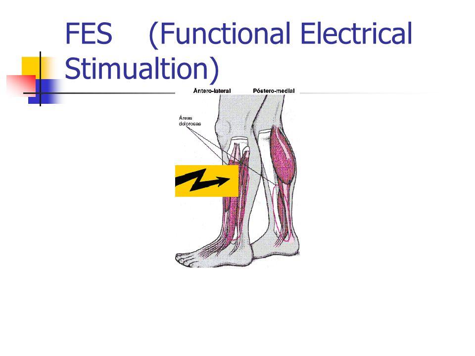 FES (Functional Electrical Stimualtion)