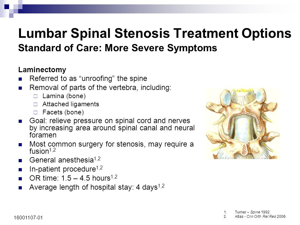 16001107-01 Lumbar Spinal Stenosis Treatment Options Standard of Care: More Severe Symptoms 1.Turner – Spine 1992 2.Atlas - Clin Orth Rel Res 2006. La