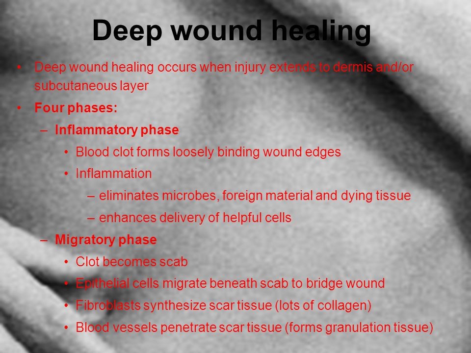 Deep wound healing Deep wound healing occurs when injury extends to dermis and/or subcutaneous layer Four phases: –Inflammatory phase Blood clot forms
