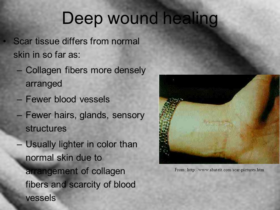 Deep wound healing Scar tissue differs from normal skin in so far as: –Collagen fibers more densely arranged –Fewer blood vessels –Fewer hairs, glands