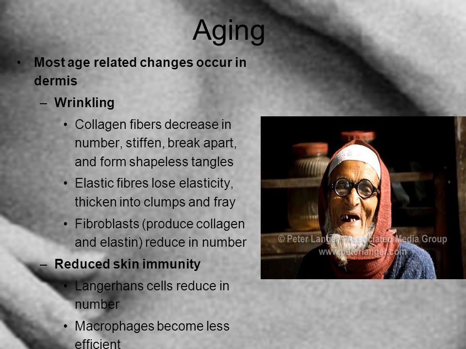 Aging Most age related changes occur in dermis –Wrinkling Collagen fibers decrease in number, stiffen, break apart, and form shapeless tangles Elastic