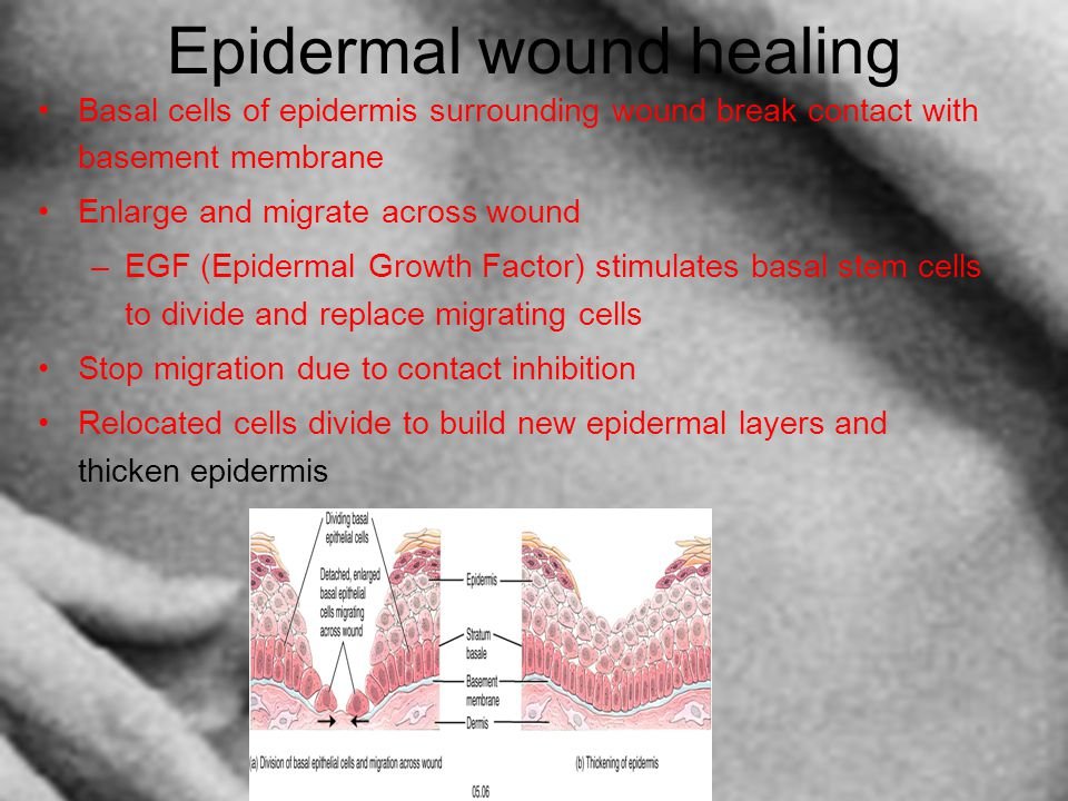 Epidermal wound healing Basal cells of epidermis surrounding wound break contact with basement membrane Enlarge and migrate across wound –EGF (Epiderm