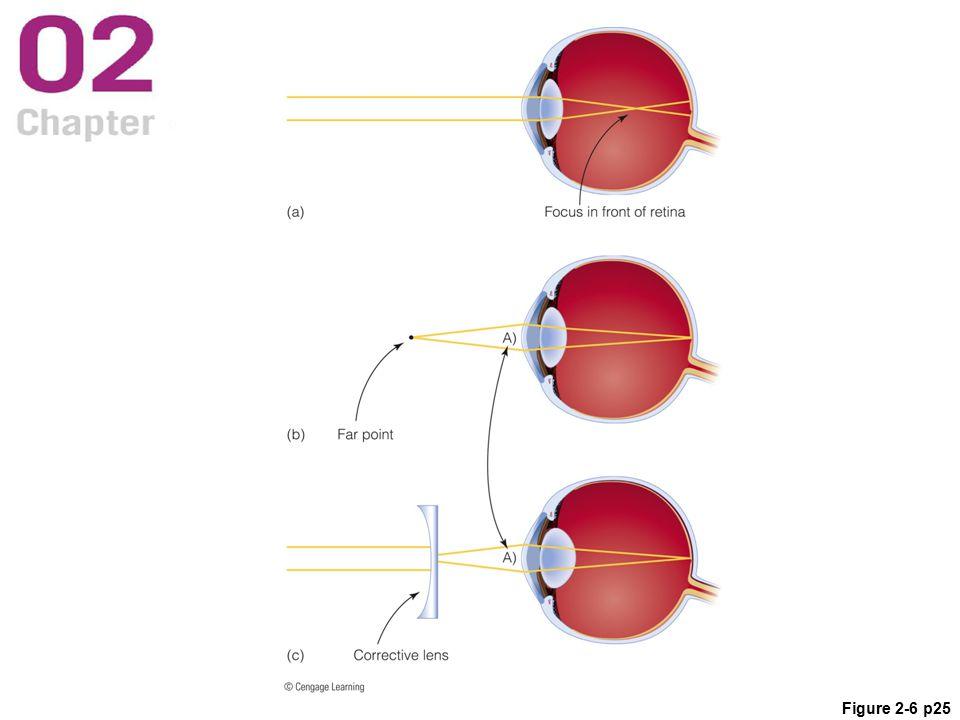 Figure 2-6 p25