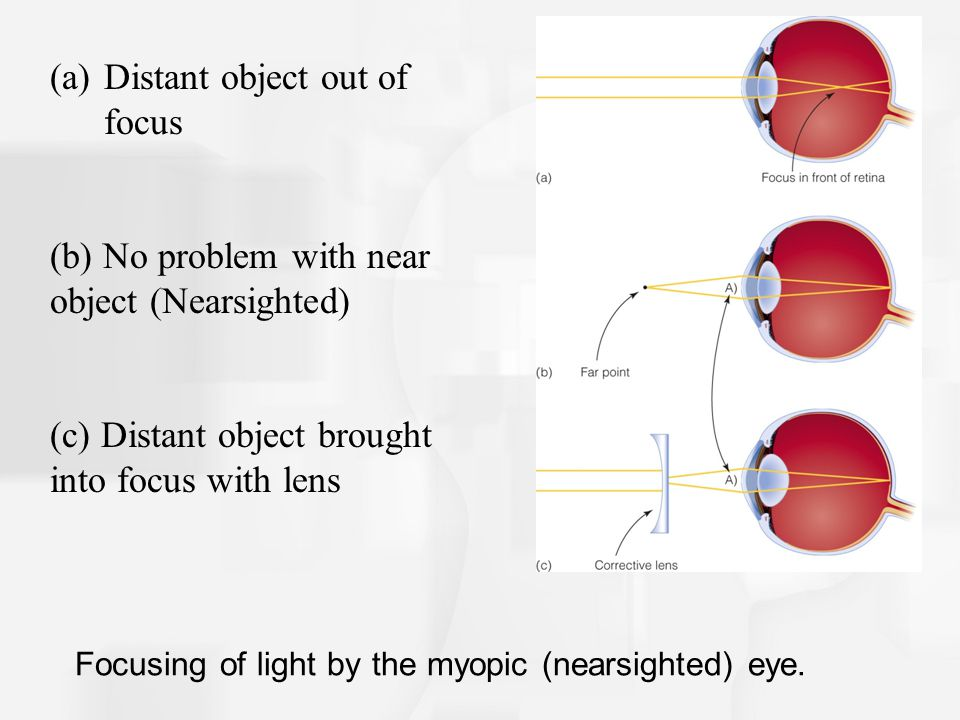 Focusing of light by the myopic (nearsighted) eye.