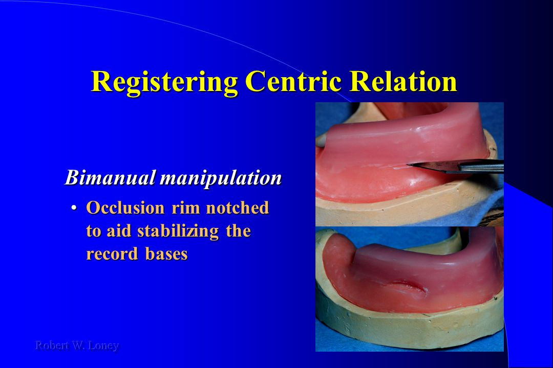 Registering Centric Relation Bimanual manipulation Occlusion rim notched to aid stabilizing the record basesOcclusion rim notched to aid stabilizing t