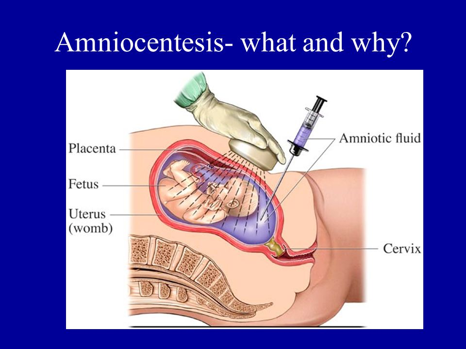 Amniocentesis- what and why?
