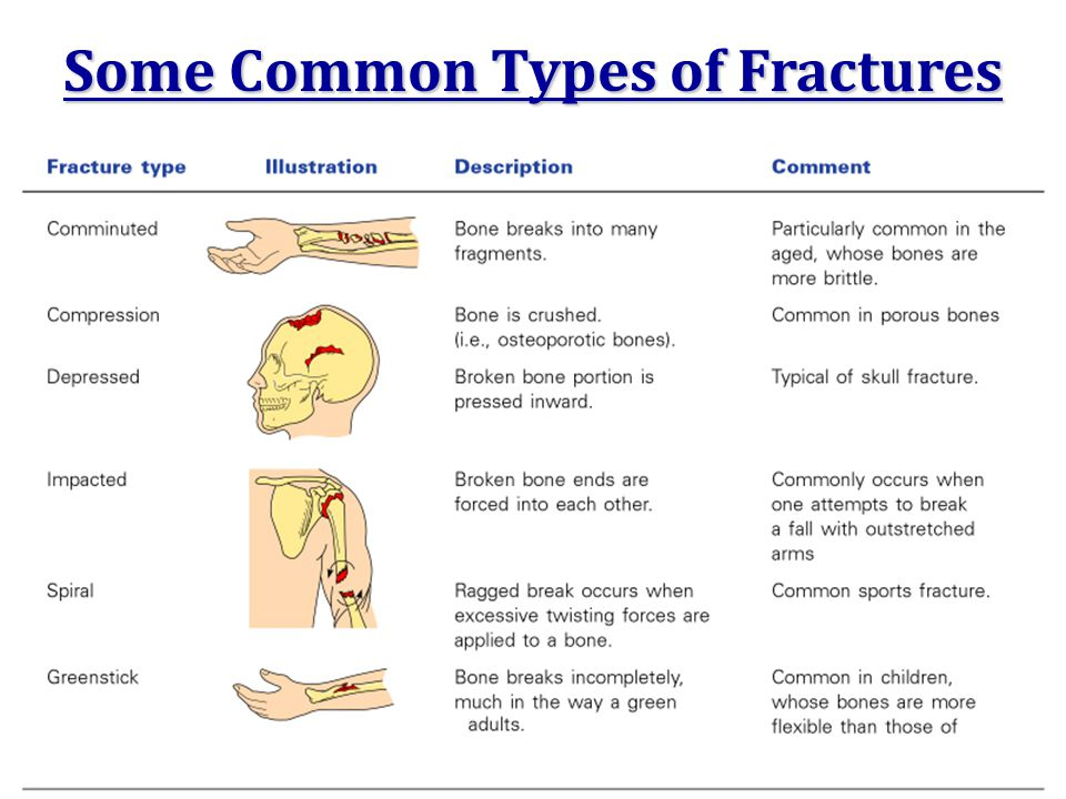 Some Common Types of Fractures