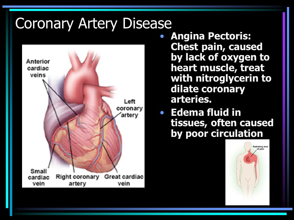 Myocardial Infarction MI or Heart Attack Lack of blood supply to the myocardium causes damage.