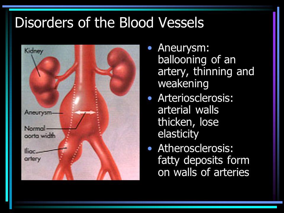 http://www.webmd.com/video/abdominal-aortic-aneurysms-stent-graft-trialaortic Aneurysm