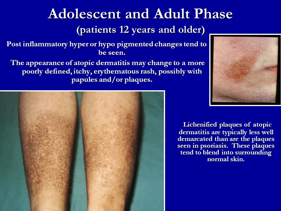 Adolescent and Adult Phase (patients 12 years and older) Post inflammatory hyper or hypo pigmented changes tend to be seen. The appearance of atopic d