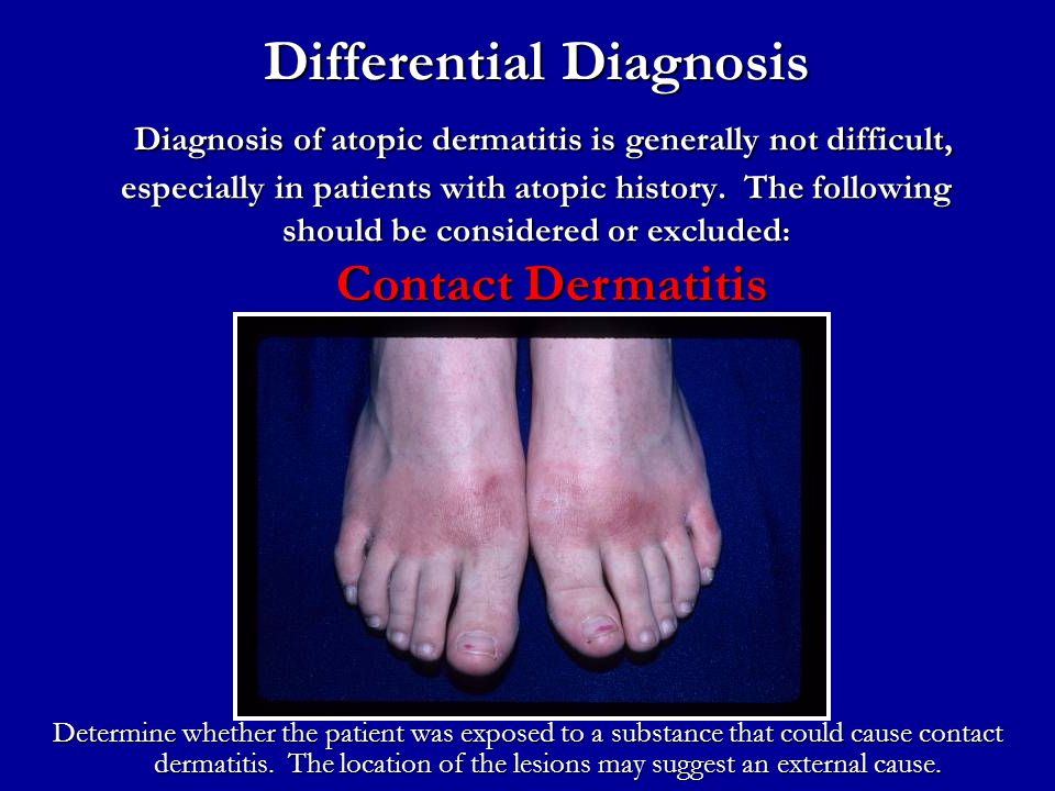 Differential Diagnosis Diagnosis of atopic dermatitis is generally not difficult, especially in patients with atopic history. The following should be