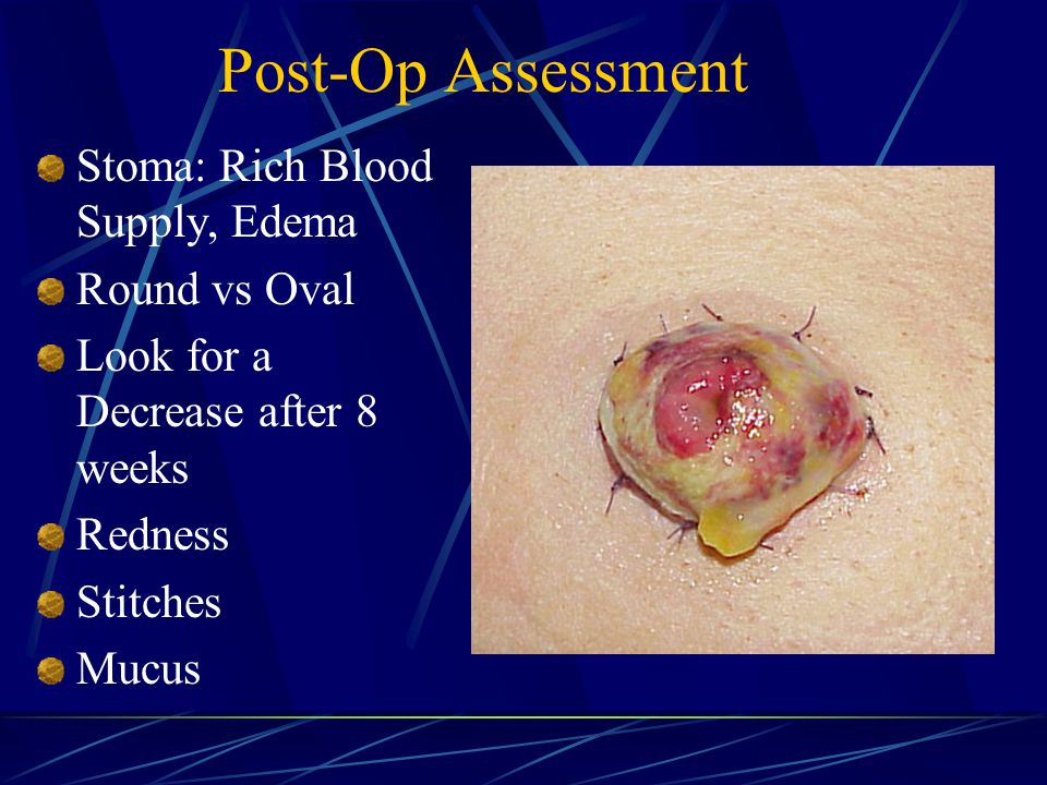 Post-Op Assessment Stoma: Rich Blood Supply, Edema Round vs Oval Look for a Decrease after 8 weeks Redness Stitches Mucus