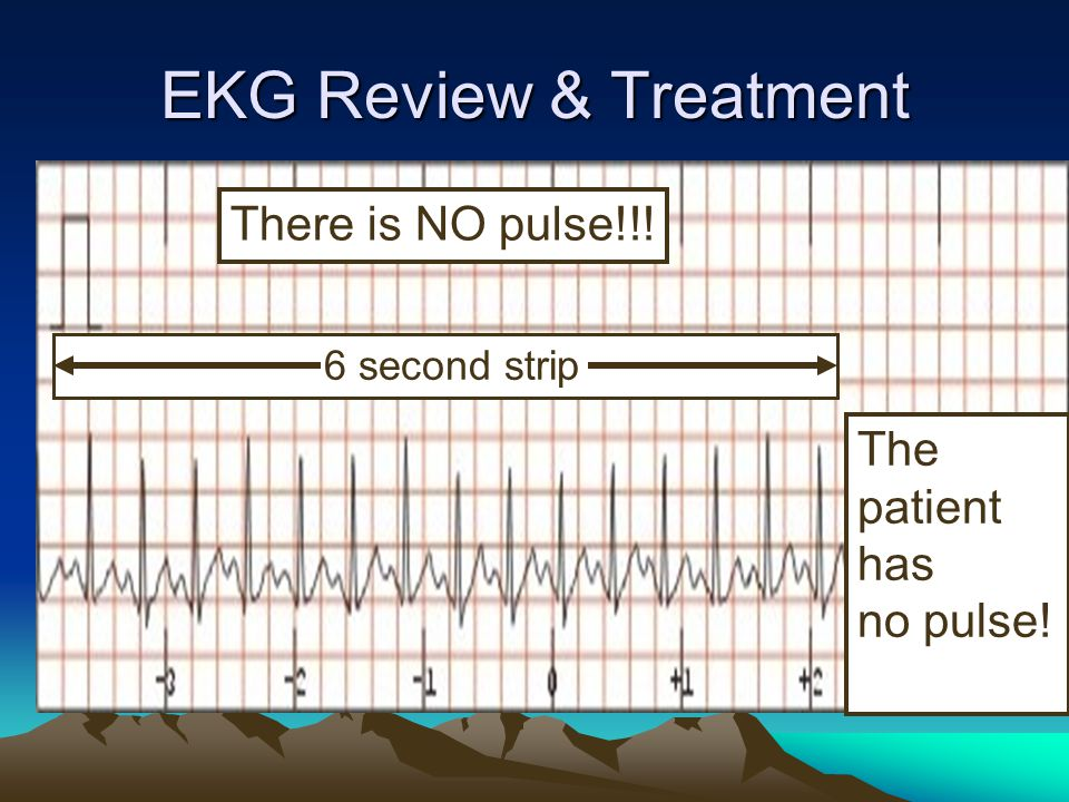 EKG Review & Treatment The patient has no pulse! 6 second strip There is NO pulse!!!