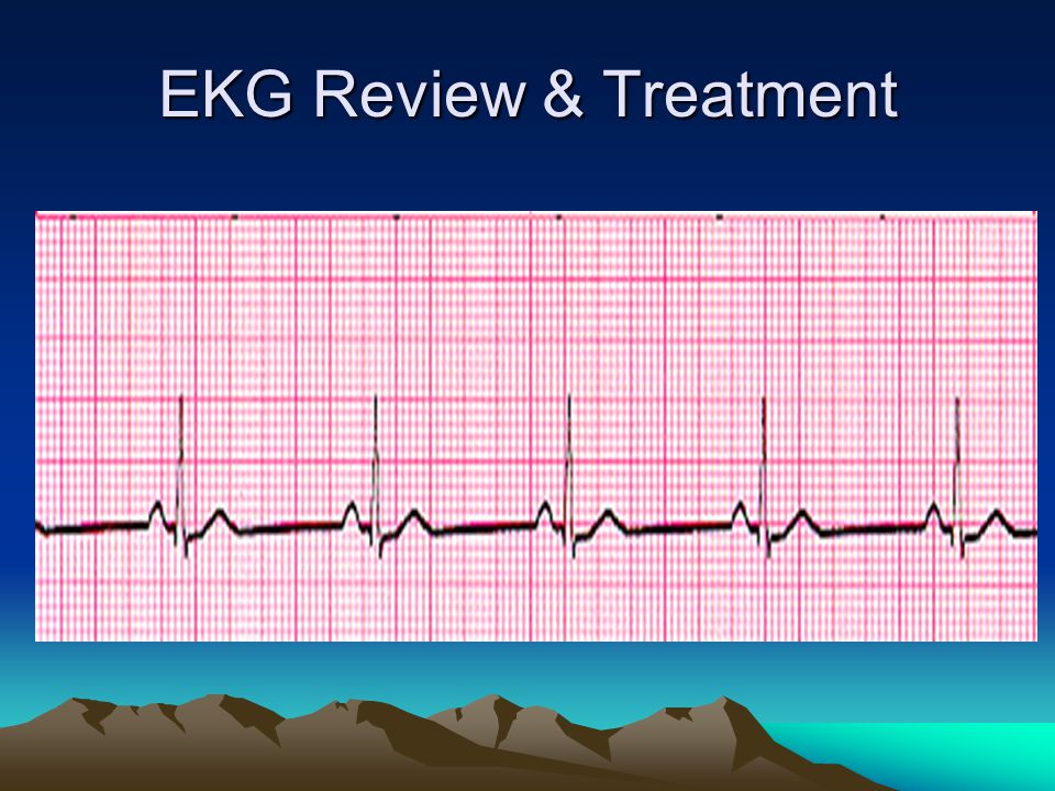 EKG Review & Treatment
