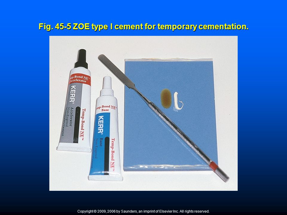 Fig. 45-5 ZOE type I cement for temporary cementation. Copyright © 2009, 2006 by Saunders, an imprint of Elsevier Inc. All rights reserved.