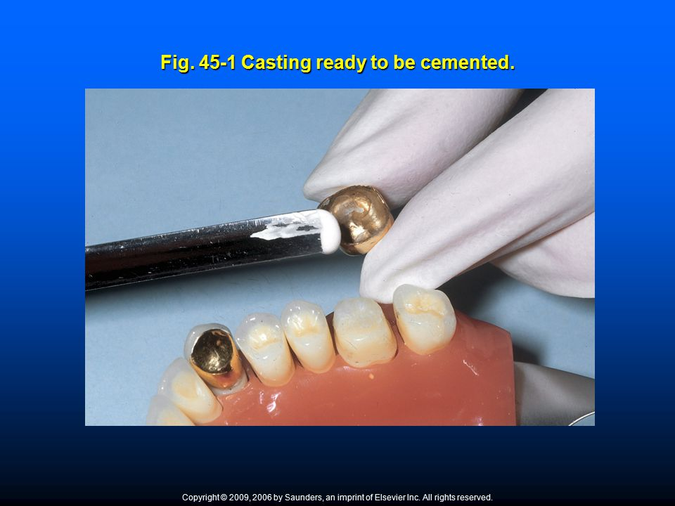 Permanent Cement Permanent cement is used in the long ‑ term cementation of gold and ceramic restorations such as inlays/onlays, crowns, bridges, veneers, and orthodontic fixed appliances.